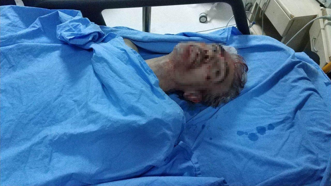 Samsun'daki Silahlı Saldırıda Ölü Sayısı 2'ye Çıktı